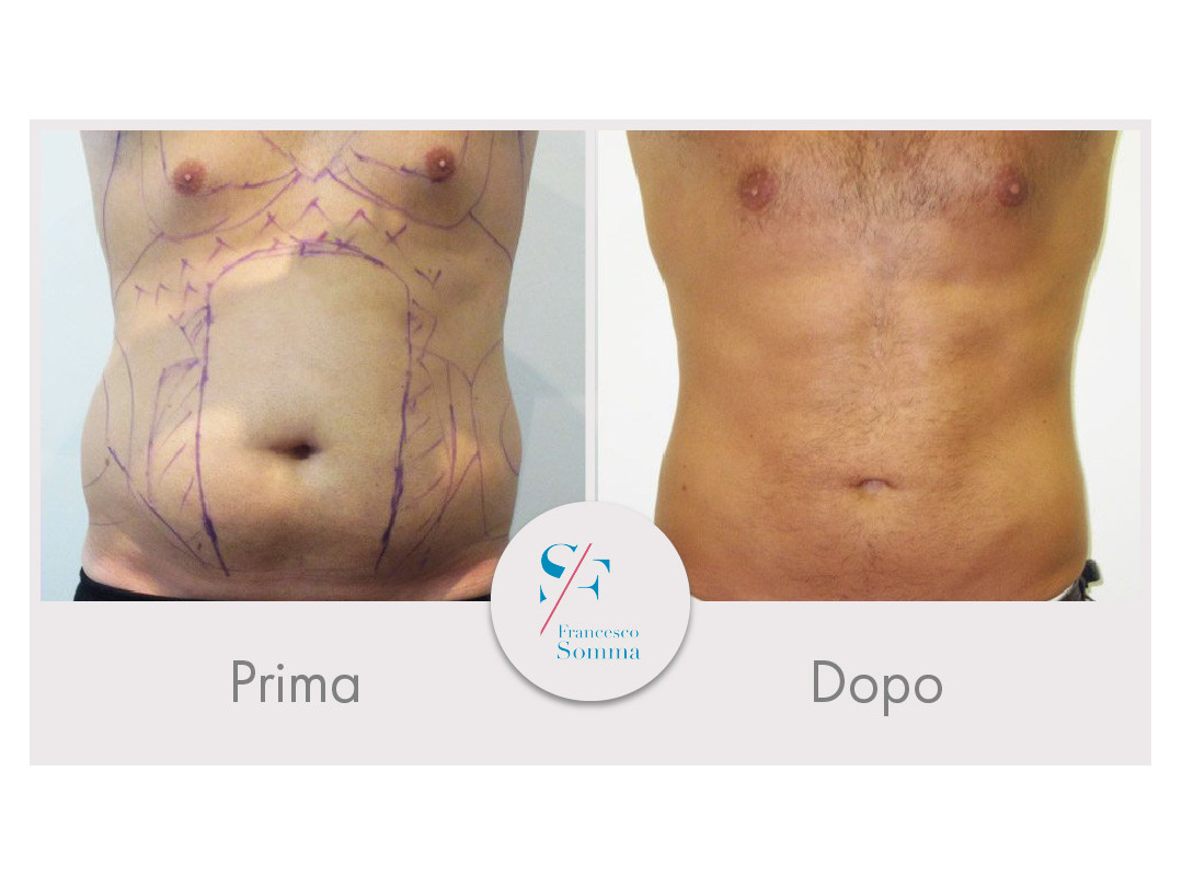 Dott. Francesco Somma - Chirurgia estetica